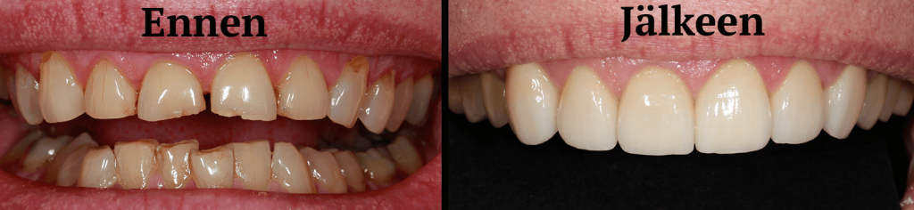 Hampaiden Kuluminen